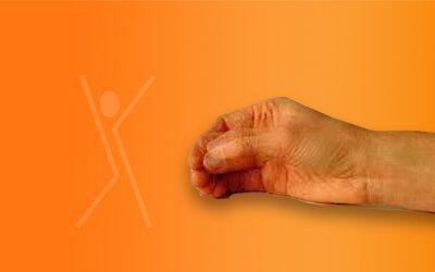 Behandeling voor Parkinson patiënten